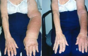 lymphatic-drainage-lymphedema-evolution-medical-associates