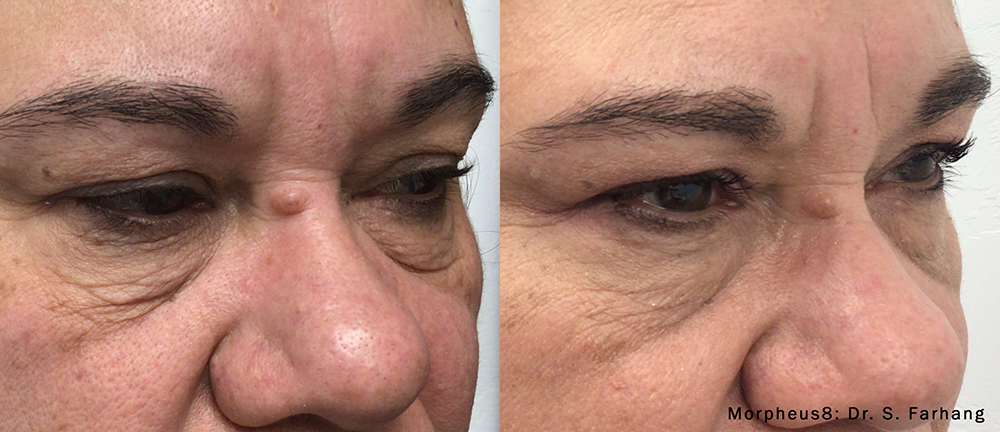 Before and After Morpheus8 Face treatment results