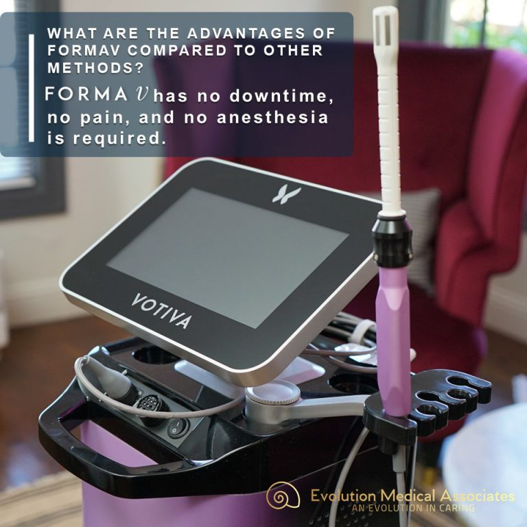 FormaV advantages